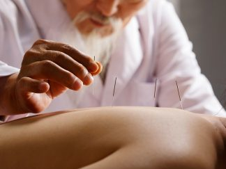 Acupuncture – Moxibustion