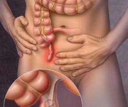 Appendicite - medecine chinoise classique - sionneau