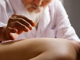 Acupuncture cours online sionneau